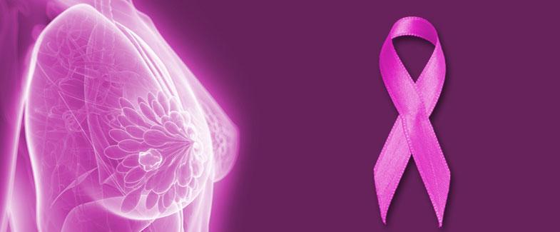 Resultado de imagen de cancer de ,mama