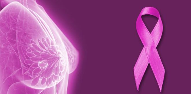 Toma de decisiones en cáncer de mama